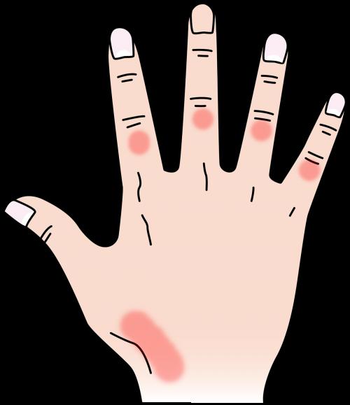 金属アレルギーによる湿疹